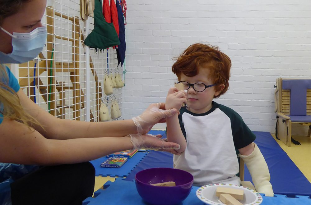 Boy with Hemiplegia in Constraint Induced Movement Therapy